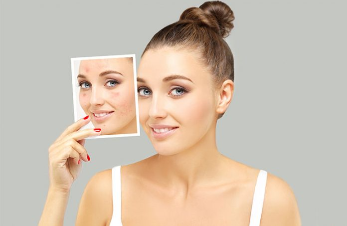 home remedies for acne scars: How To Get Rid Of Nasty Acne Scars
