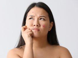 does biotin cause acne: