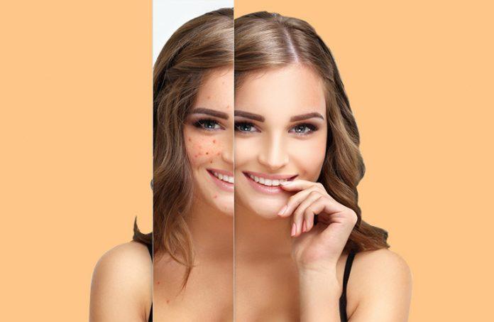 vitamin b5 for acne:
