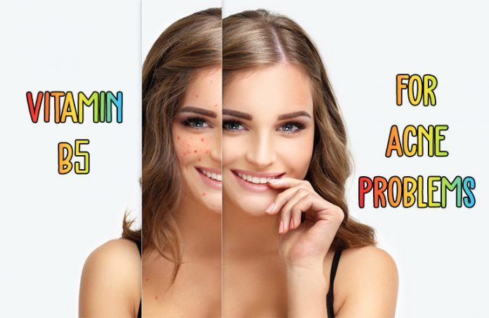Vitamin B5 for Acne Problems: Does it really work?